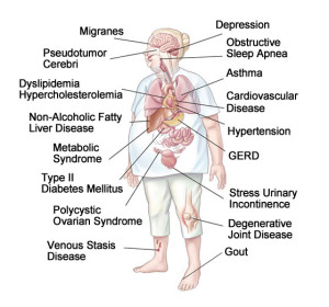 Obesity Related Illnesses - Comorbidities